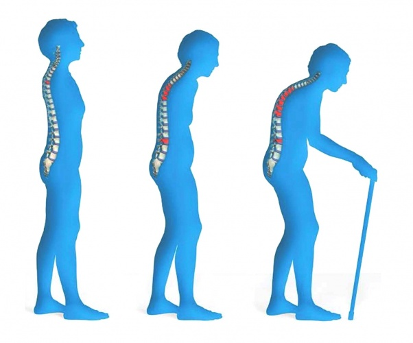 Osteoporoz  Osteoporoz, kemiklerinizin tehlikeli biçimde zayıflamasına özellikle kalça, omurga ve bilekte kırık problemiyle karşılaşma ihtimalinizi artırmaya neden olan bir hastalıktır. Bu nedenle hekiminiz düzenli olarak kemik yoğunluğunuzu tespit etmek isteyebilir. Hekiminizin önereceği bazı ilaçların yanı sıra sağlıklı kilonuzu korumak ve egzersiz yapmak kemik kaybınızı yavaşlatabilir.
