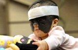 'Batman' maskesi ile doğdu