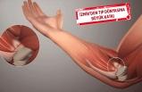 """Türk bilim insanları """"yapay tendon"""" geliştirmek için çalışıyor"""