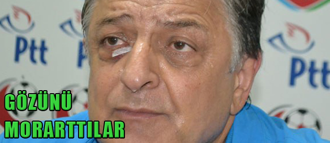 Yılmaz Vural'ın Gözünü Morattılar