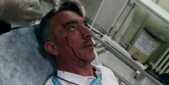Hastanede Dayak Skandalı