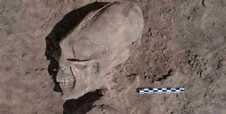 Bin Yıllık Kemikler Şaşırttı