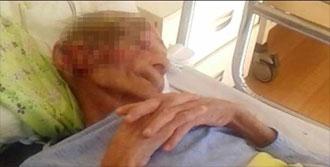 Cilt Kanseri Nedeniyle Öldü