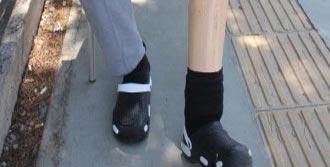 Öteki Bacağını da Kaybetmek İstemiyor