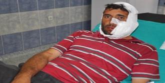 Sivas'ta Kurdun Saldırdığı 6 Kişi Yaralandı