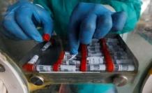 Korkutan corona virüsü bulgusu: İyileşenler tekrar hastalanıyor