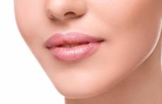 Çatlayan dudaklara doğal bakım