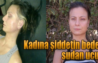 Kasten Yaralayan Sanıklara 3'er Bin TL Para Cezası