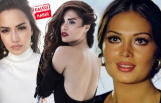 Estetikle başka birine dönüşen Türk ünlüler