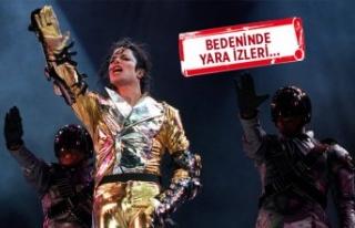Michael Jackson'ın yıllardır saklanan otopsi...