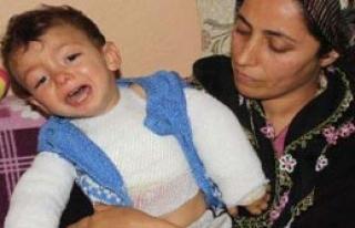 Haşlanan Bebeğe Hastane Bulunamadı