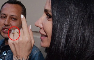 Yüzüğü Göz Kamaştırdı