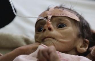 Yemen'de nüfusun yüzde 70'i açlıkla savaşıyor