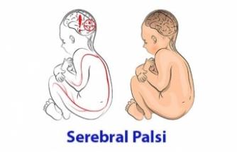 Serebral Palsi (Beyin Felci) nedir?