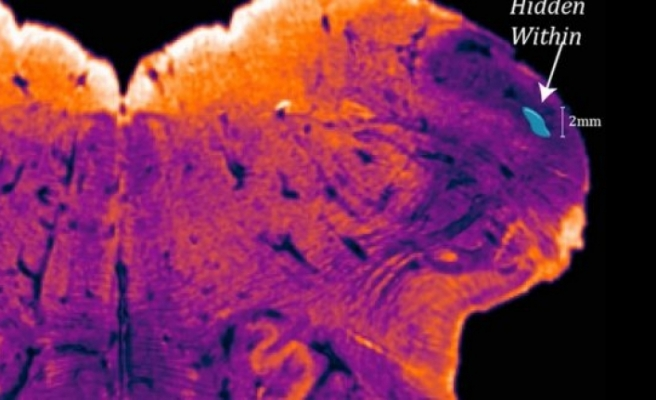İnsan beyninde yeni keşif : bizi eşsiz kılıyor