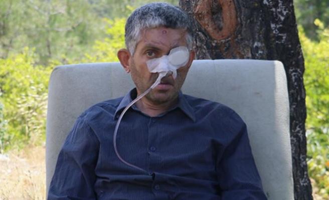 'Diş çektirdi, gözünü kaybetti' iddialarına valilikten açıklama