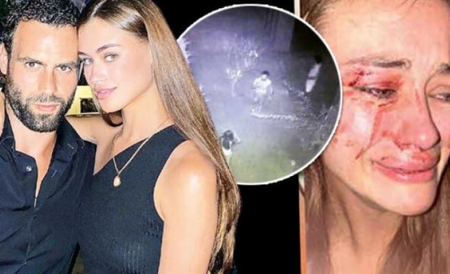 Daria Kyryliuk'a saldırıda çifte şüphe! Polisler sevgilisini teşhis etti