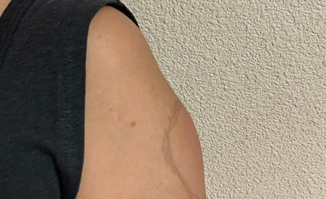 Moderna'nın corona aşısında bir yan etki daha