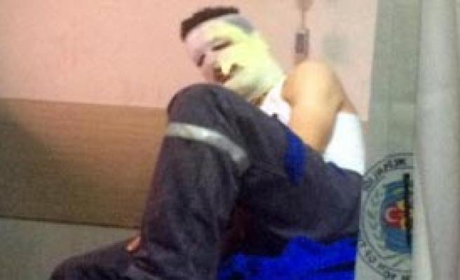 Fabrikada Makine Alev Aldı, 2 İşçi Yaralandı