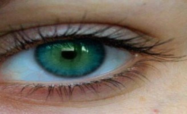 Bu Hastalık Göz Rengini Değiştiriyor