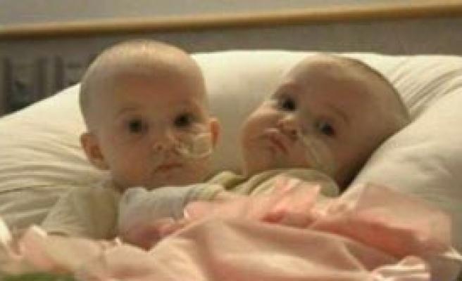 Yapışık İkizler Ayrıldı