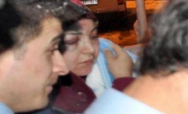 Şiddetten Kaçan Kadına Polis Koruması