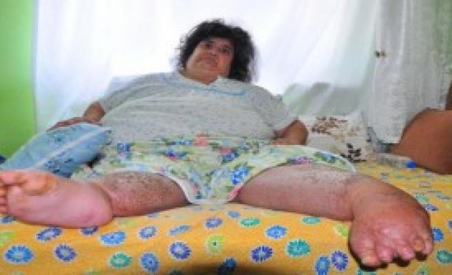 Fil Hastalığı Yatağa Mahkum Etti