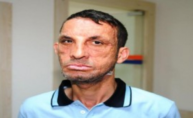 Yüz Nakilli Acar'a 'Cinayet' Davasından Beraat