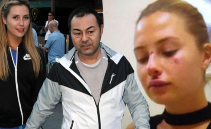Serdar Ortaç'ın eşi Chloe Miami'de kaza geçirdi