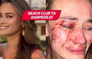 Ukraynalı model Çeşme'de saldırıya uğradı!
