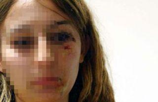Kadın Polise Çirkin saldırı
