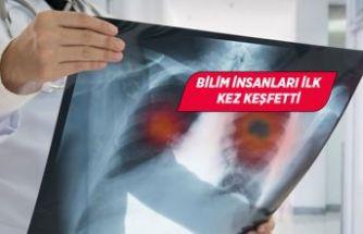 Covid-19, neden akciğerlere daha fazla zarar veriyor?