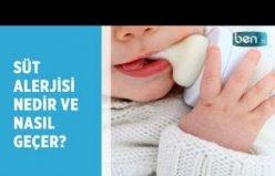 Süt alerjisi nedir?