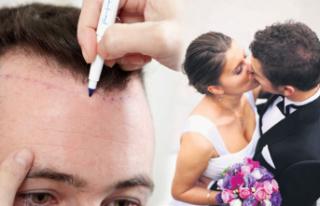 Düğün öncesi yeni trend: Saç ekimi