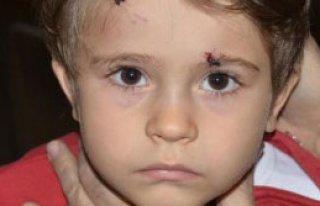 3 Yaşındaki Elif, Hastanelik Oldu